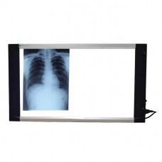 Slim LED X Ray View Box (25mm Thickness) With Dimmer & Sensor - Double Film